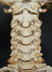 Front view of neck - Cervical Spine
