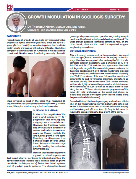 Growth Modulation in Scoliosis Surgery