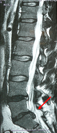 Lumbar disc herniation, Bangalore Karnataka
