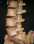 Lumbar spine, Bangalore India