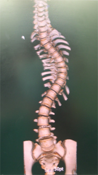 the causes manifestation and remedy for scoliosis Diagnosis and clinical manifestations of scoliosis, the most common manifestation of scoliosis is lateral curvature of the spine welcome guest | rss neurology, ophthalmology, cardiology, oncology, obesity, endocrinology, vascular surgery - causes, symptoms, diagnosis, treatment, description of the disease.